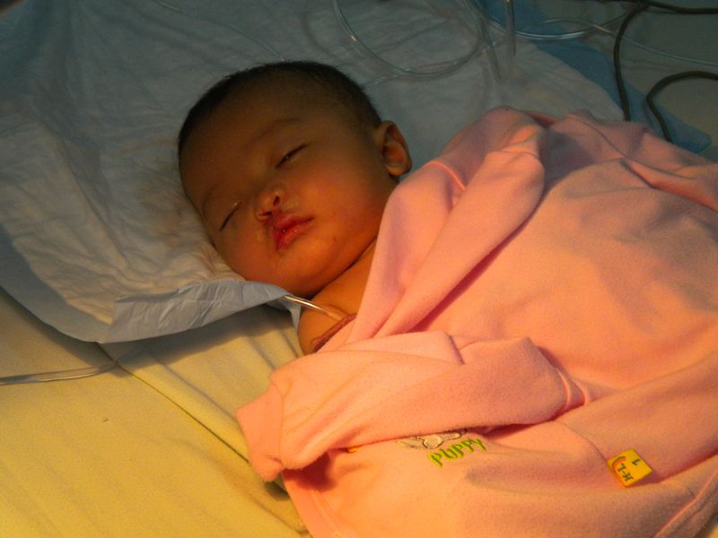Sleeping baby with cleft repair